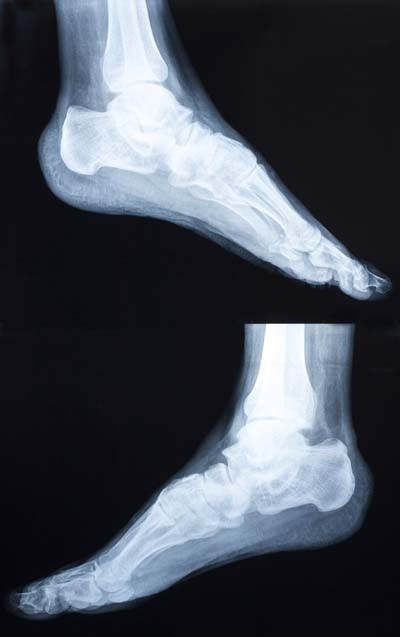 Foot and Ankle orthopedic surgery
